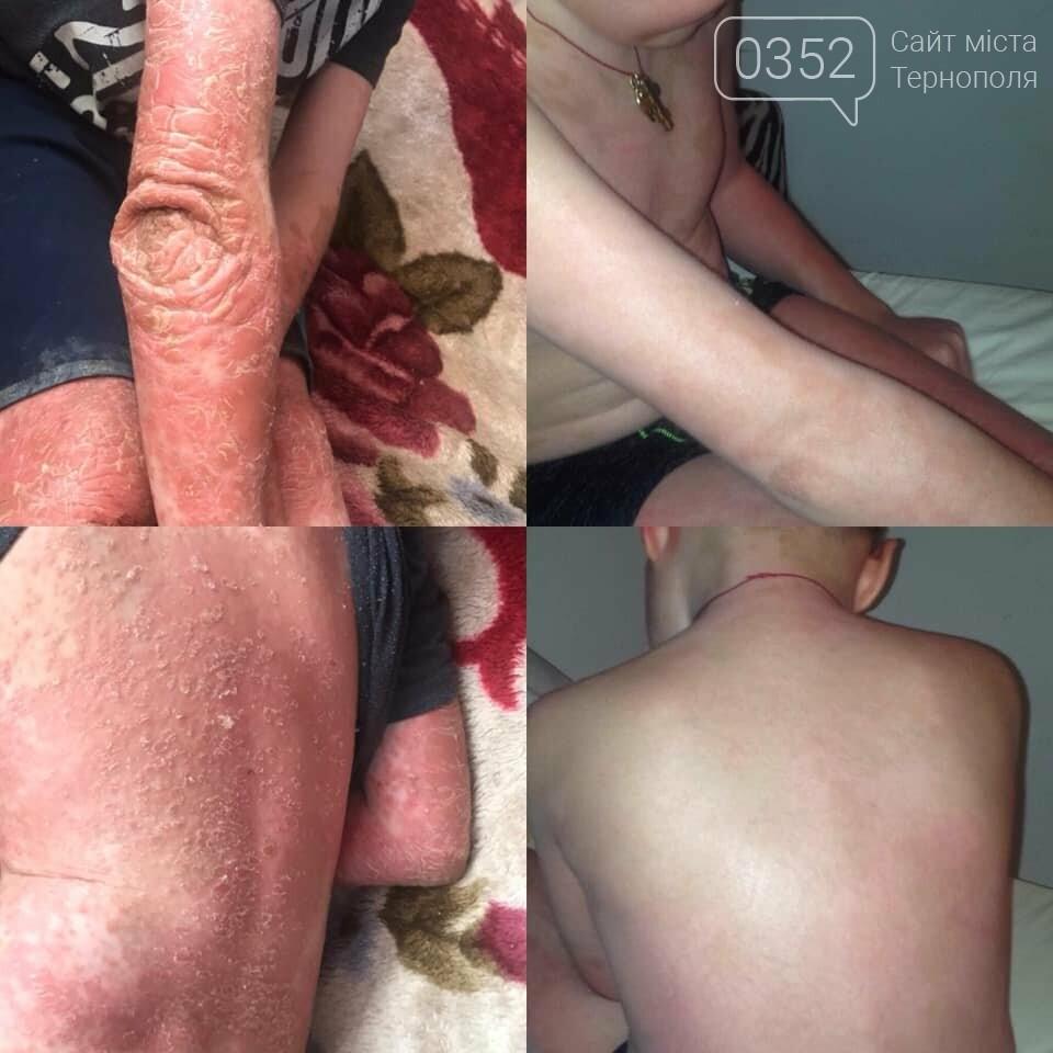 Шість років мук і сліз, горе і не бажання жити - позаду: хлопчик, що боровся відразу з двома страшними захворюваннями шкіри, отримав дієве..., фото-2