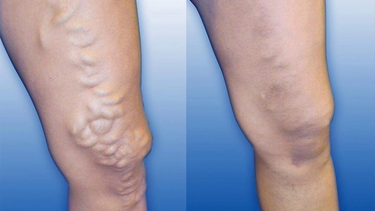 Ендовенозна лазерна коагуляція – лікування варикозу без наркозу та оперативного втручання, фото-1