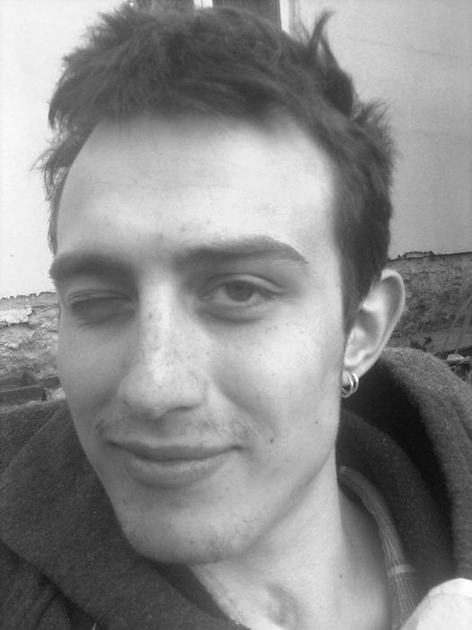 """""""Я закривався у собі і плакав"""": Віктор Жгутов із Тернопільщини потребує операції (фото), фото-1"""
