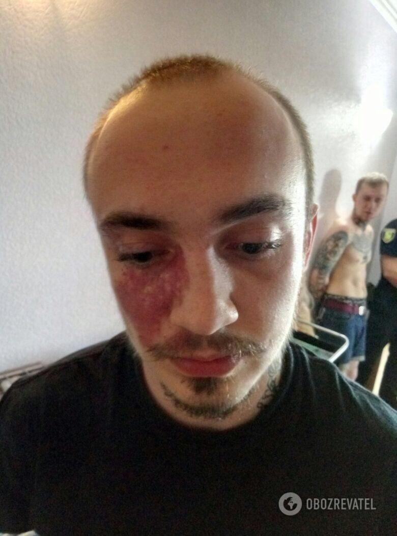 В Харкові затримали групу осіб, які ледь не до смерті побили АТОвця з Тернопільщини через напис на футболці (фото), фото-9