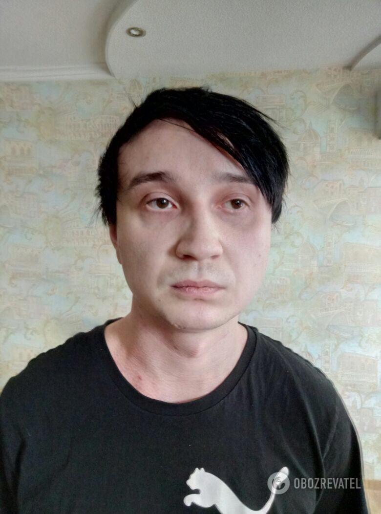 В Харкові затримали групу осіб, які ледь не до смерті побили АТОвця з Тернопільщини через напис на футболці (фото), фото-3