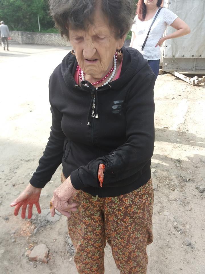 """У Тернополі на """"Дружбі"""" собаки розірвали руку 90-річній бабусі (фото), фото-2"""