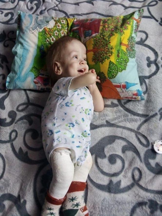 """""""Я вірю, що мій син зможе одужати"""": Тадейчику з Тернопільщини необхідна допомога (ФОТО), фото-1"""