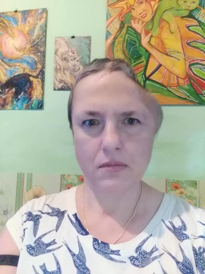 Рідні просять небайдужих тернополян допомогти зібрати кошти на титанову пластину для Наталії Чернової (ФОТО), фото-1