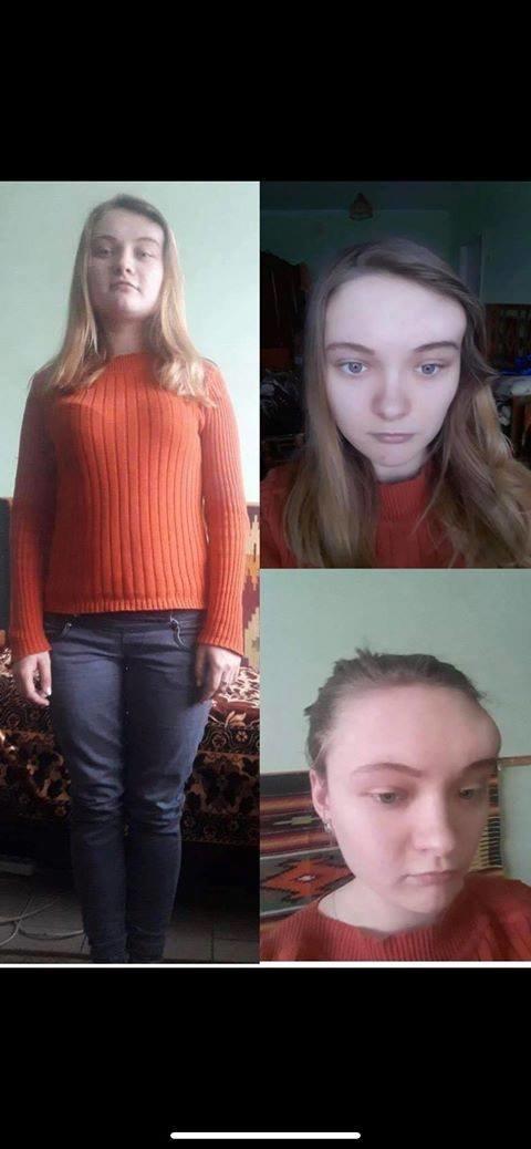Небайдужих тернополян закликають допомогти 19-річній Тетяні Гусці побороти страшну хворобу (ФОТО), фото-1