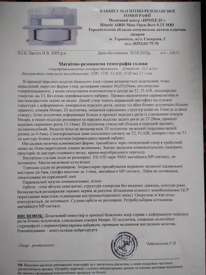 У Тернополі звинувачують медиків, які відправили дитину з пухлиною головного мозку додому, бо думали, що у неї отруєння (ДОКУМЕНТ), фото-1