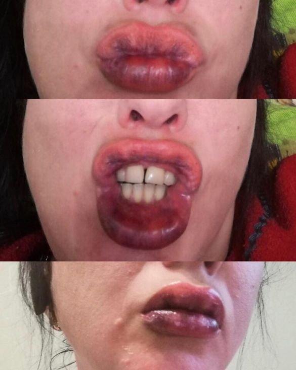 """""""Мов ті вареники..."""": акційне збільшення губ закінчилося для жінки страшним переляком (ФОТО, 18+), фото-1"""