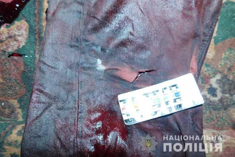 Чоловік стік кров'ю: у Тернополі жінка вбила співмешканця одним ударом ножа (ФОТО 18+), фото-1