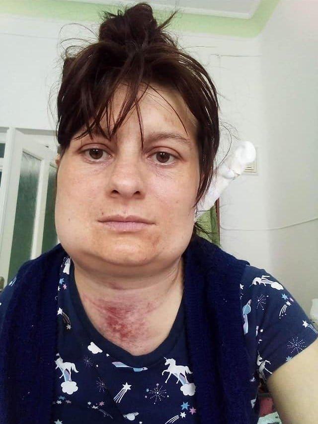 Після ковіду у мешканки Тернопільщини відмовляє єдина нирка: необхідні кошти на пересадку, фото-2